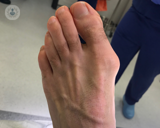 A photo of a foot with a bunion
