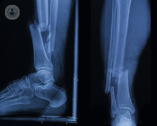 Two right leg x-rays side by side. The left scan of the leg shows side view of a broken bone, whereas the right shows the same break but from the front - the bone is a not stable and broken.