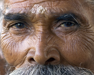 Old man glaucoma