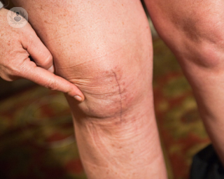 knee-replacement-surgery