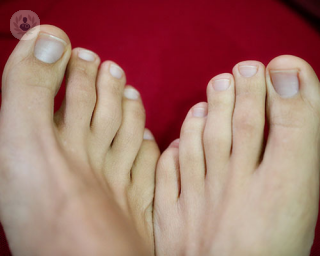 feet and toes. Toes can sometimes be affected by wear and tear from daily life, resulting in corns and hammer, claw and mallet toes.
