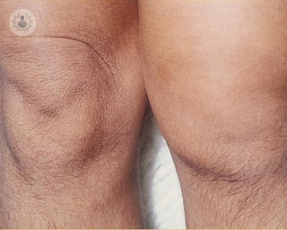 Two knees close up