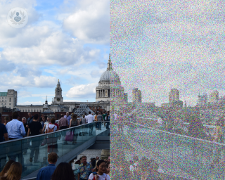 View of London representing what visual snow patient's experience - one side clear, the other grainy.