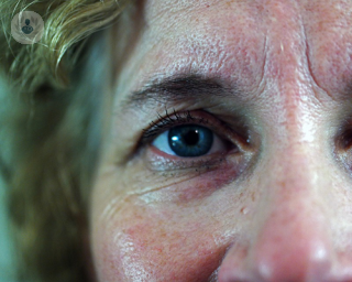 eye of middle aged woman