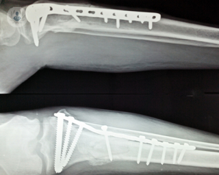 X-ray of internal fracture fixation