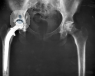hip-replacement-surgery