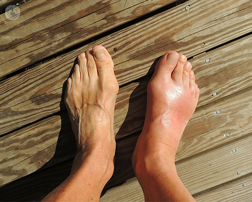 A person's two feet are standing on a wooden surface. The left foot is in regular condition whereas the right foot is painfully red and swollen due to gout.