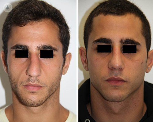 nasal surgery before after
