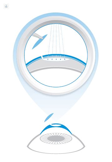 Diagram of the SMILE procedure, powered by Zeiss.