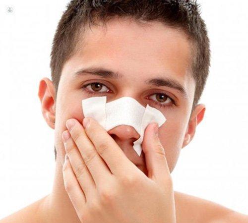 Nose surgery: rhinoplasty, septoplasty and turbinoplasty