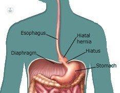 The hiatal hernia explained