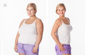 bariatric_surgery