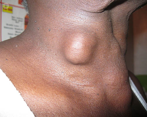 Thyroid Nodules What Is It Symptoms Causes Prevention And