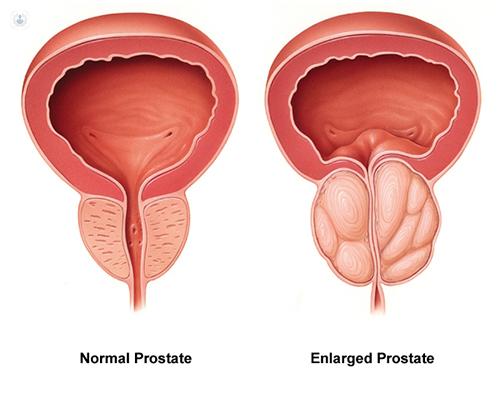 Image result for prostate cancer
