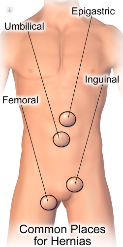Femoral Hernia What Is It Symptoms Causes Prevention