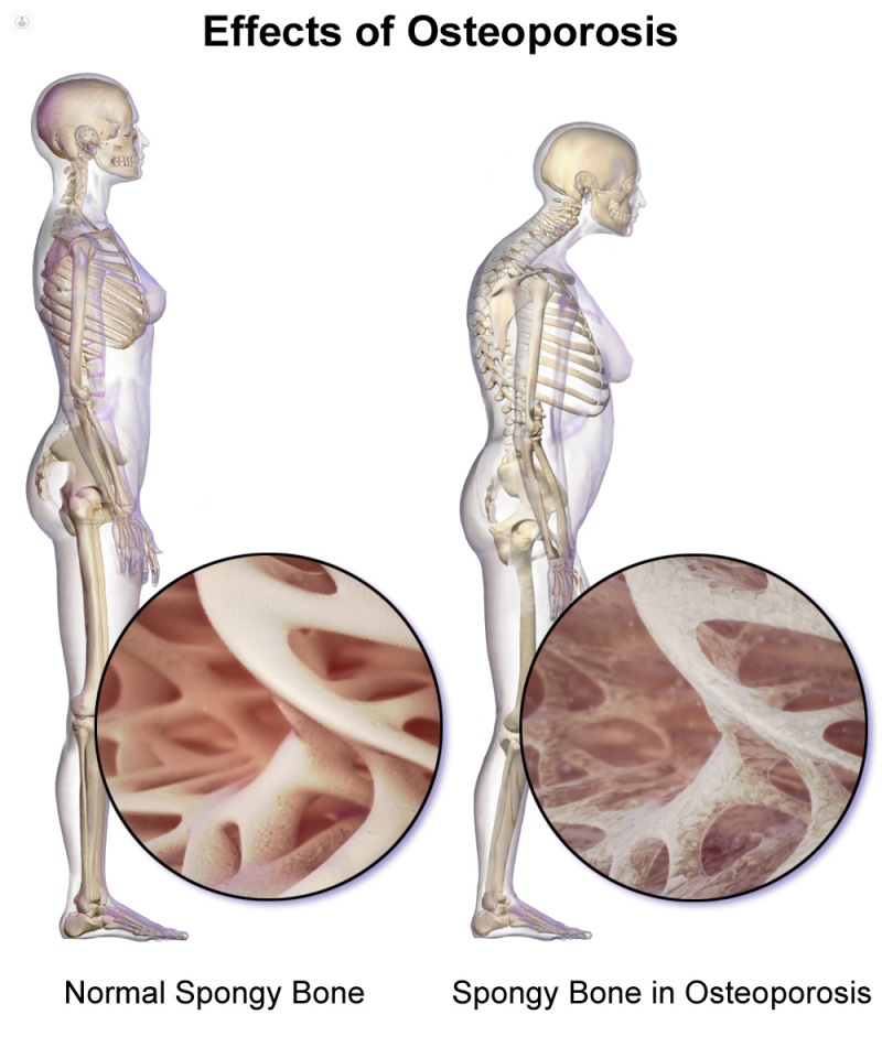 34++ What type of doctor is best to treat osteoporosis ideas in 2021