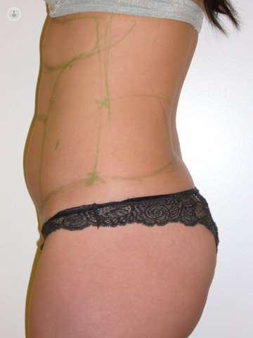 Liposuction: what is it, symptoms, causes, prevention and
