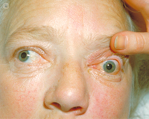 Exophthalmos Bulging Eyes What Is It Symptoms Causes