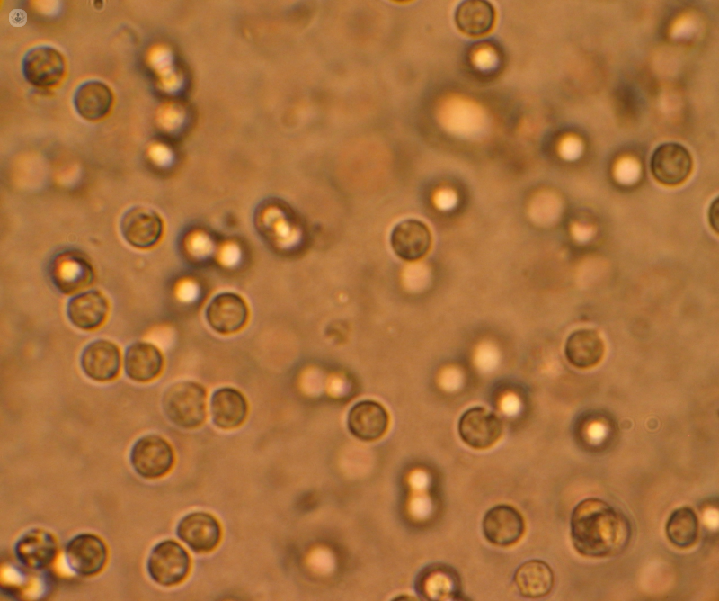 Prostatitis makró hematuria