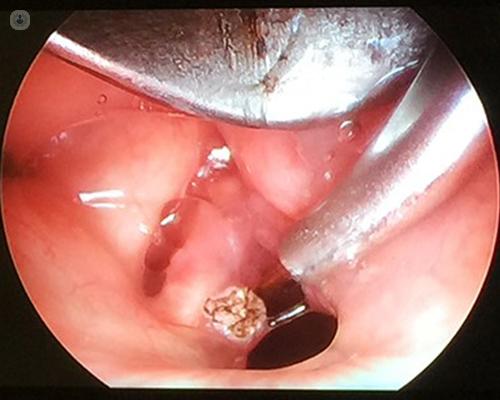 o detoxifiere naturală a colonului verucile genitale ce să facă