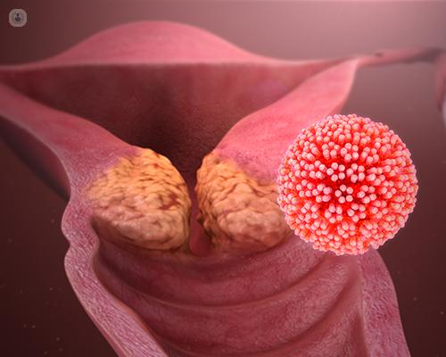 Human papillomavirus strain 16 Hpv non cancer strain
