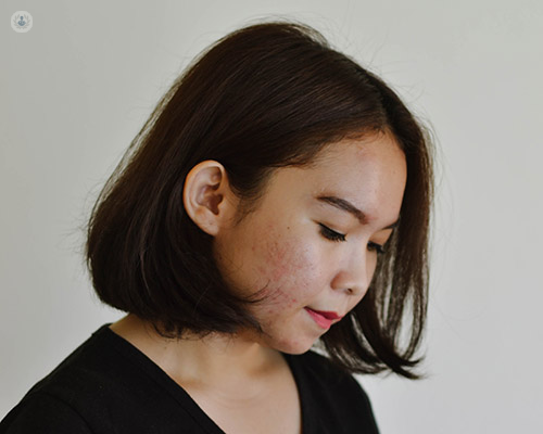 Gaining Control Of Your Acne Scars