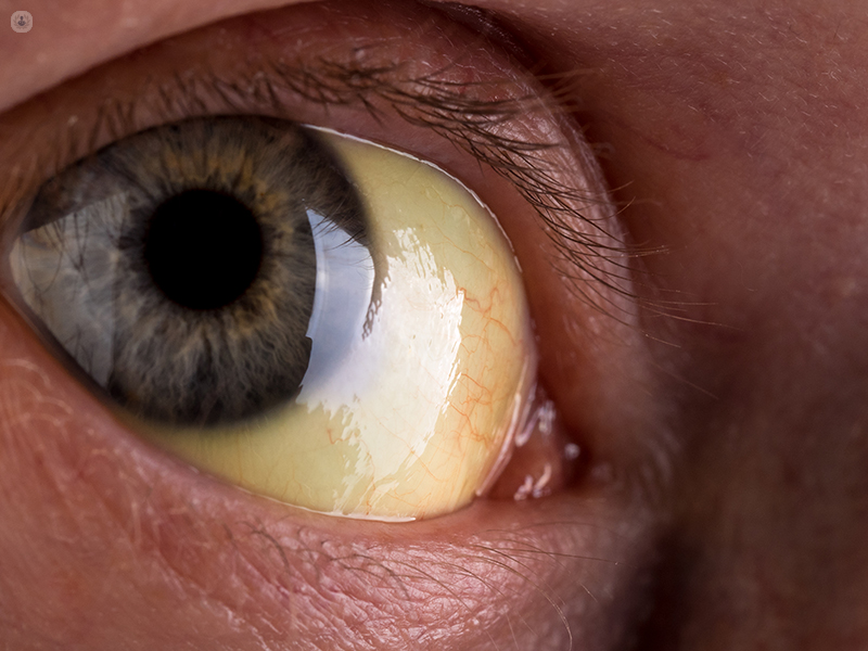 A close up of an eye which has the yellow colouring that may be experienced by a person with jaundice