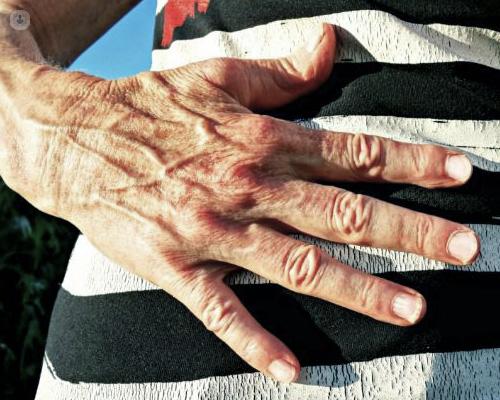 prominent veins in hands