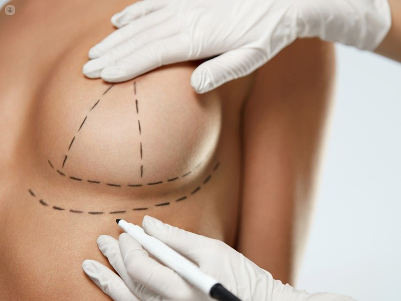 Breast Augmentation With Your Own Body Fat Top Doctors