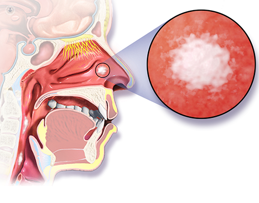hpv nasal cancer