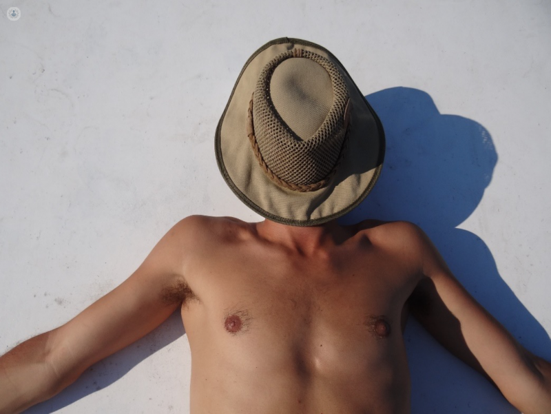 How Do Sunburns Increase Your Risk Of Skin Cancer Top Doctors
